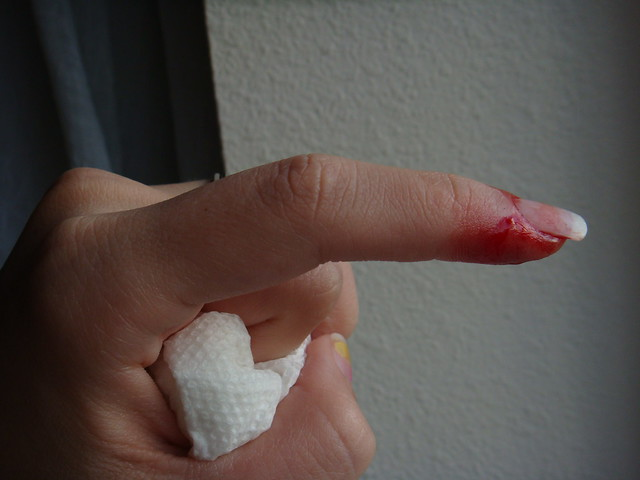 Knife Cut {hand} | Flickr - Photo Sharing!