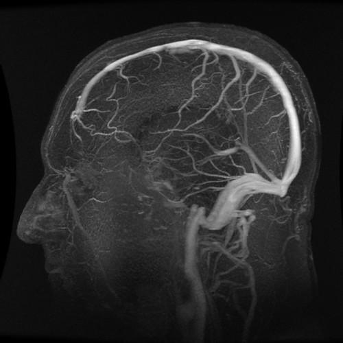 Annotated Sagittal ATECO MR Venogram