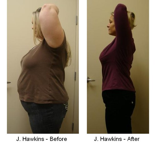 HCG Weight Loss Before & After Photos | Flickr - Photo Sharing!