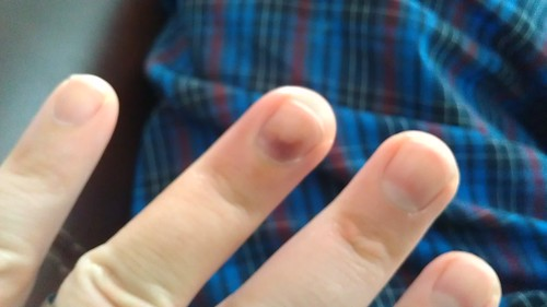Finger update by christopher575