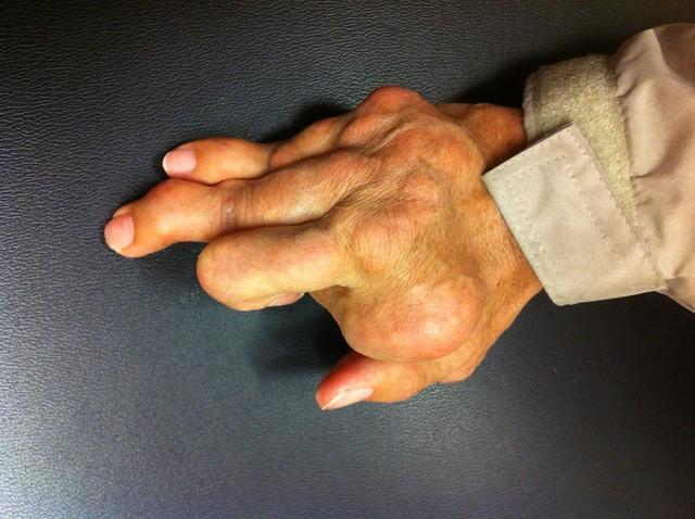 gouty hand arthritis 4...