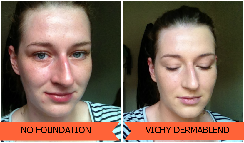 Vichy_Dermablend_Coverage
