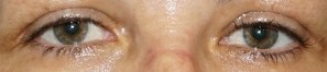 Blefaroplastia del párpado superior