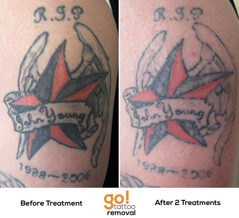 Laser Tattoo Removal Progress Photos Allentown Pa
