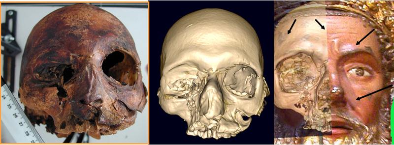 3. Reconstrucción del cráneo del papa Luna, a partir del relicario de San Valero