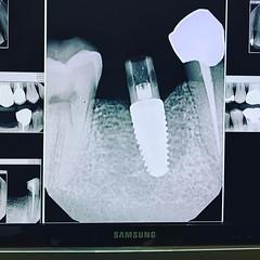 #implantimpression time. #healthydentist
