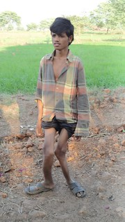 Skeletal fluorosis of legs
