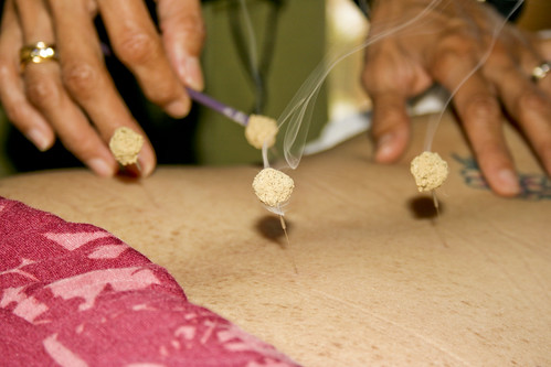 17.32_lede_Iao-Acupuncture_by-sean-hower