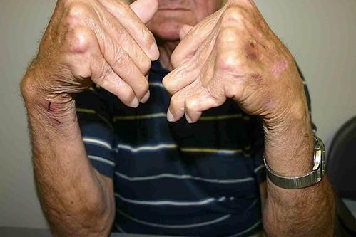 Penyakit Autoimun: Ketika Sistem Kekebalan Tubuh Kebingungan