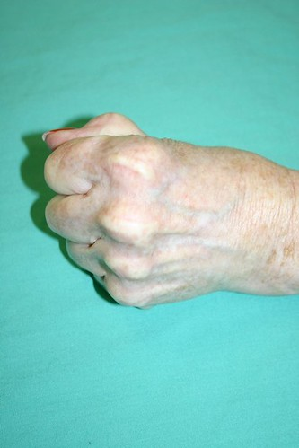 taking control of your arthritis