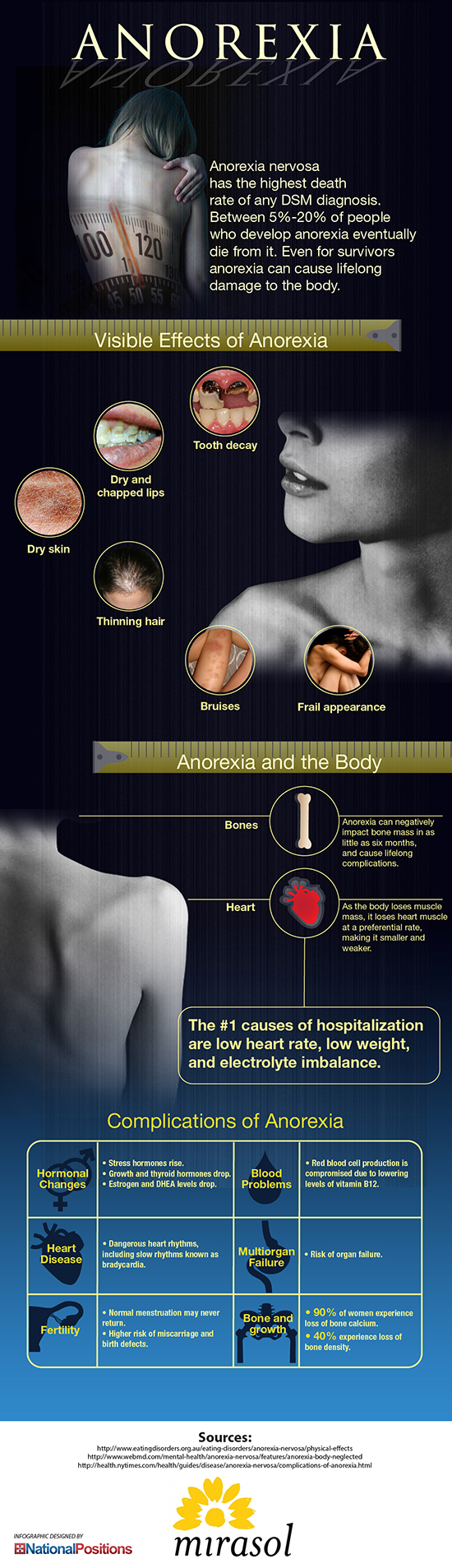What are the symptoms of anorexia nervosa?