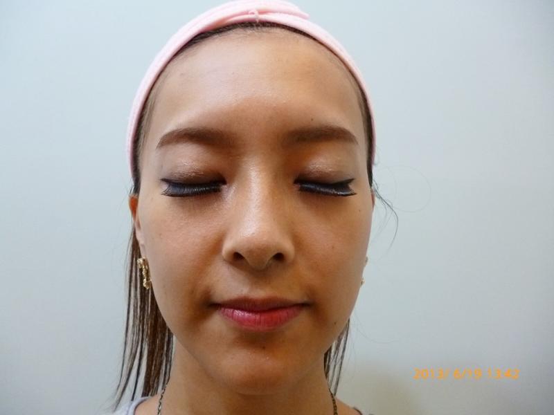 3D聚左旋乳酸美立方  液態拉皮 童顏針  童顏針  眉尾拉提  鬆弛拉提  膠原蛋白  拉皮
