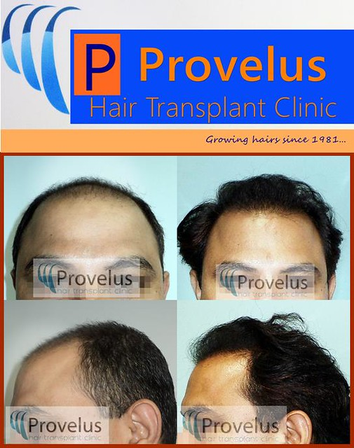 Hair Transplant Results, Provelus Clinic, India