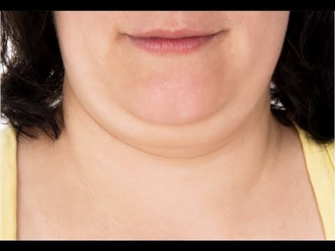 Double Chin Surgery in Islamabad