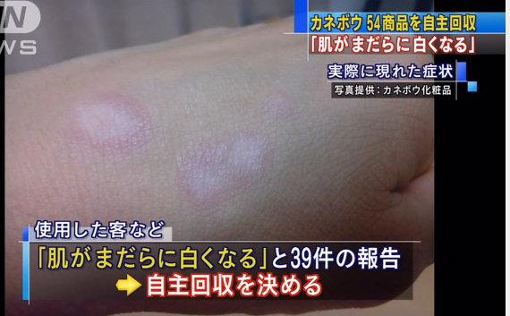 肌がまだらに白く…カネボウ化粧品54品目自主回収 - Mozilla Firefox 04.07.2013 165741
