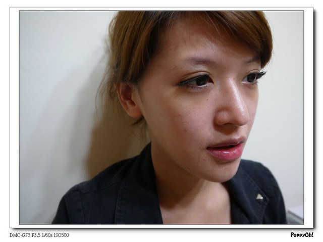 粉餅雷射,光纖粉餅雷射,膚色暗沉,黑眼圈,黑眼圈消除方法,消除黑眼圈,黑眼圈,美麗晶華