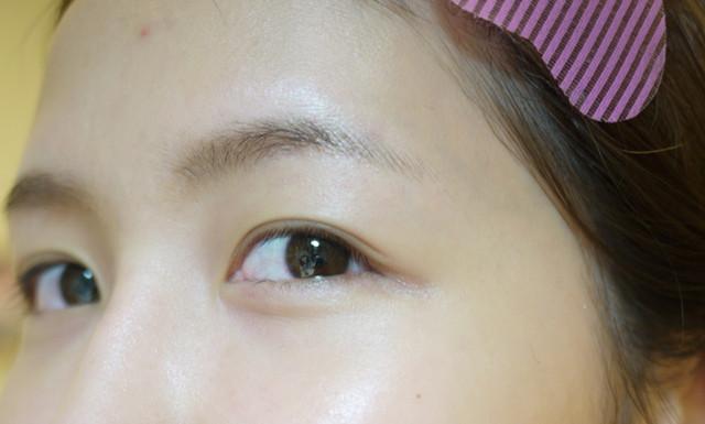 粉餅雷射,光纖粉餅雷射,膚色暗沉,黑眼圈,黑眼圈消除方法,消除黑眼圈,黑眼圈,美麗晶華,