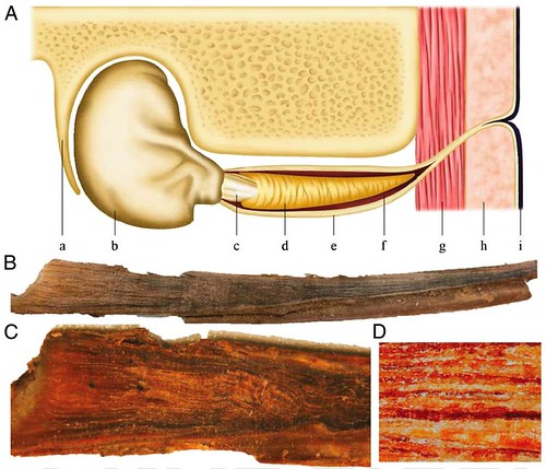 In every whale's earwax is a record of its lifetime exposure to pollutants