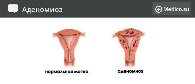 Аденомиоз: симптоми, ступеня, лікування аденоміозу матки