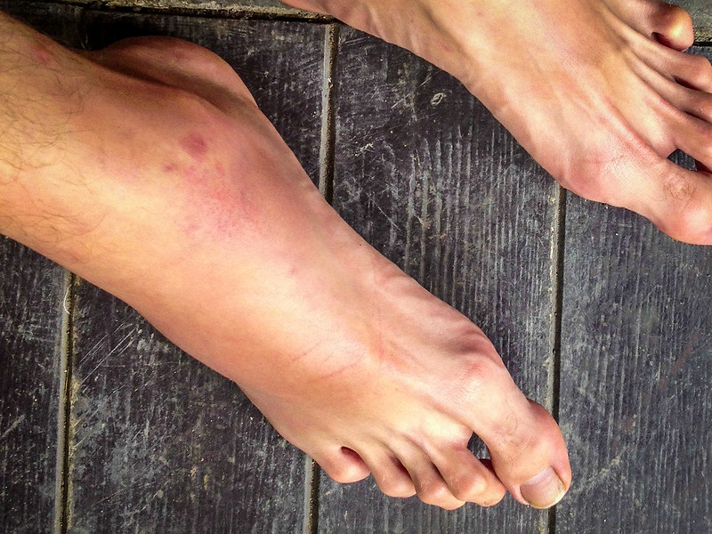 Muay Thai voet