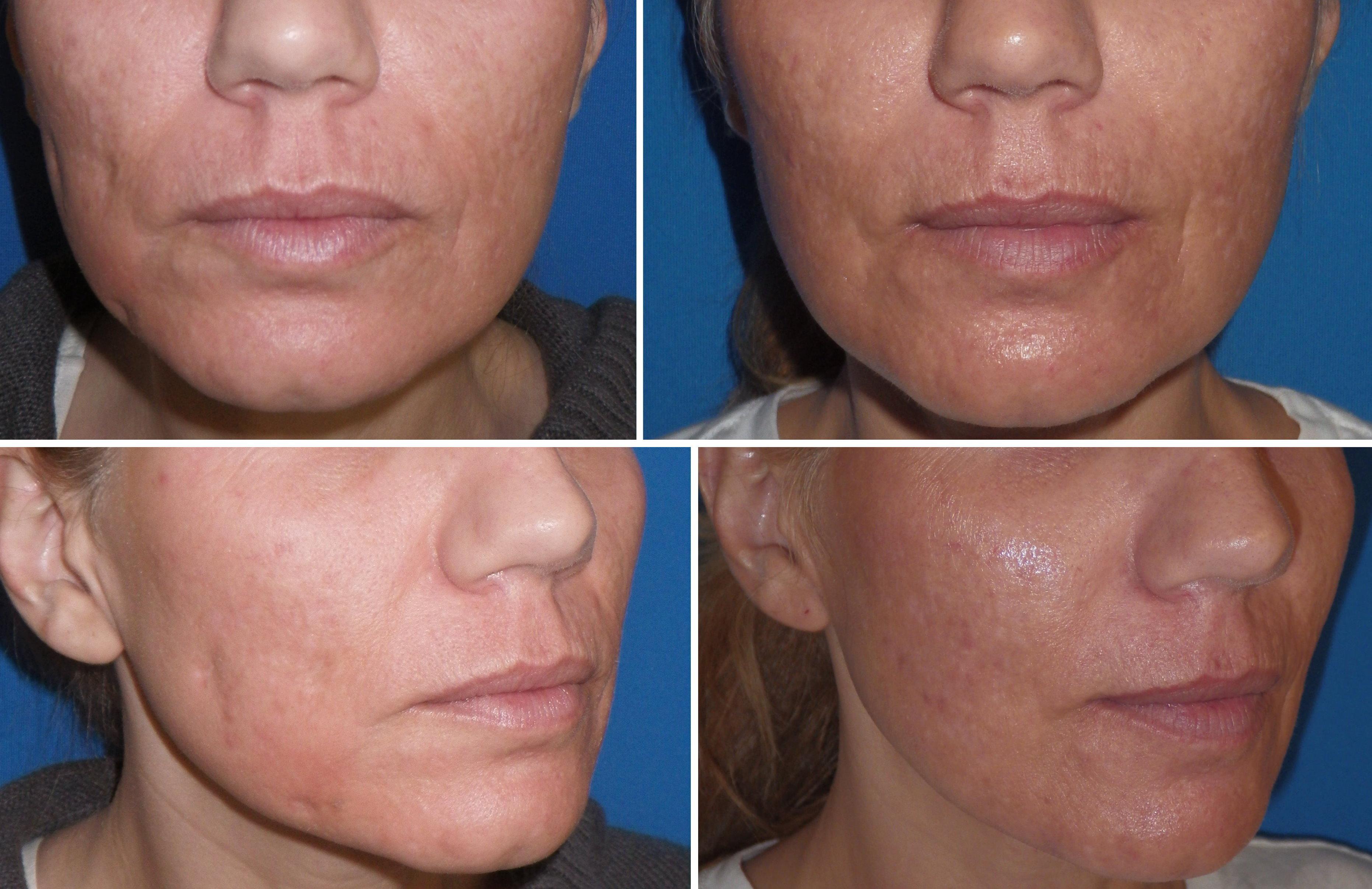 Acne Scar Facial Resurfacing Stories