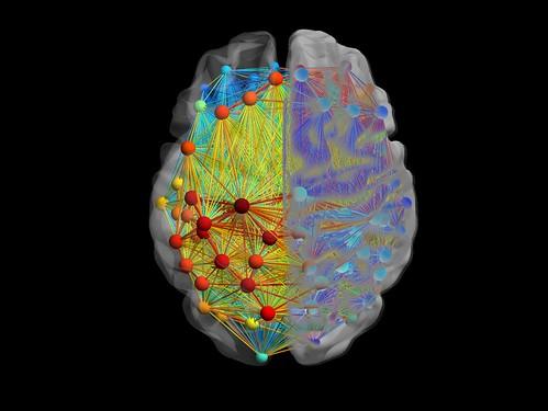 脳、左脳と右脳