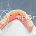 protese protocolo - implante dentario