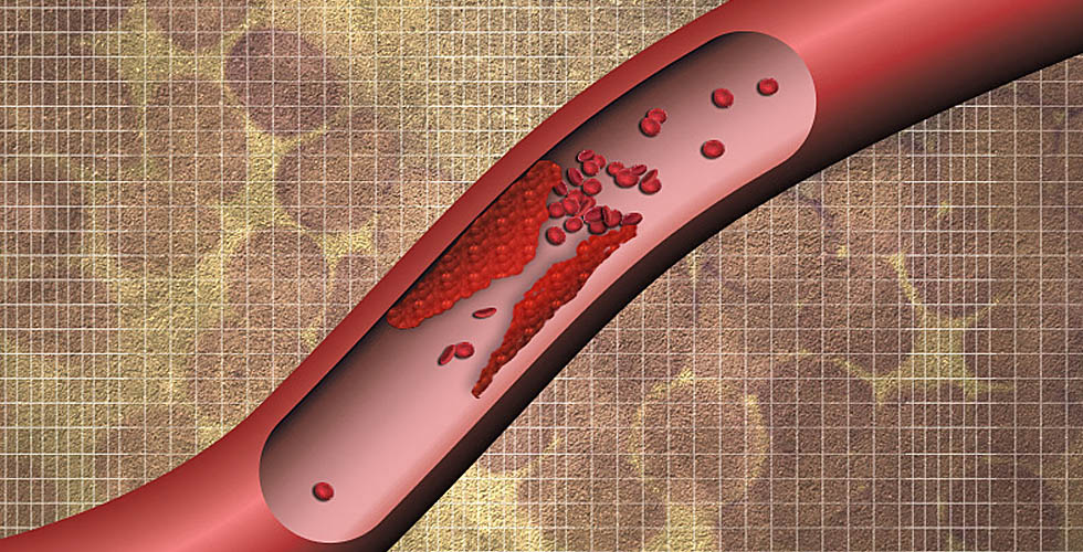 Finding blood clots before they wreak havoc