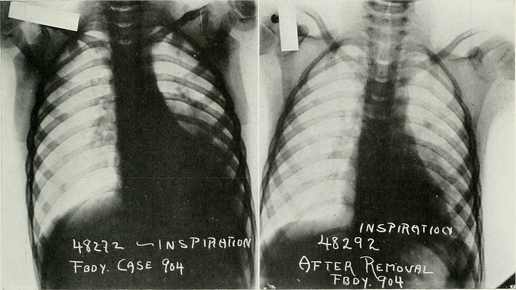 Image from page 314 of The American journal of roentgenology, radium therapy and nuclear medicine (1906)