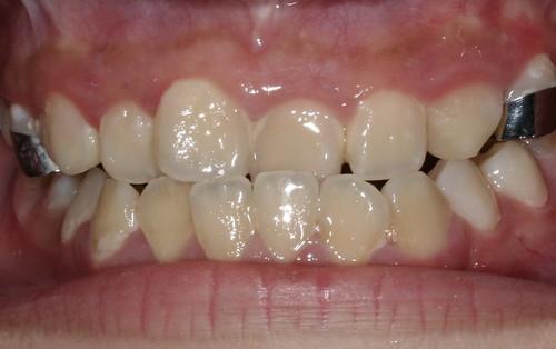 黃經理牙醫診所 兒童牙醫-戽斗牙齒矯正3