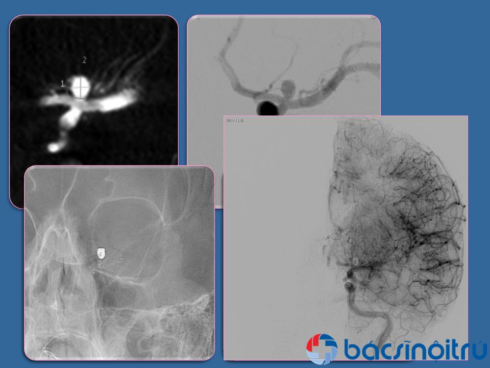 Phình động mạch não chiếm tỷ lệ 3 – 5% dân số và tỷ lệ vỡ 1/10.000 dân/năm. Phình động mạch não thường gặp ở nữ (theo nghiên cứu ISUIA là 75% ở nữ) trong độ tuổi 40 – 50, trẻ em ít gặp (2 – 4%). Phình động mạch não có nhiều hình thái khác nhau: hình túi, hình thoi, hình giọt nước và hình ngoằn ngoèo…, và các vị trí túi phình thường gặp: thông trước (35%), thông sau (40%), não giữa (20%) và sống nền (5%).