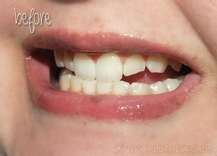 Smile Brilliant LED Tooth Whitening - Before (1)