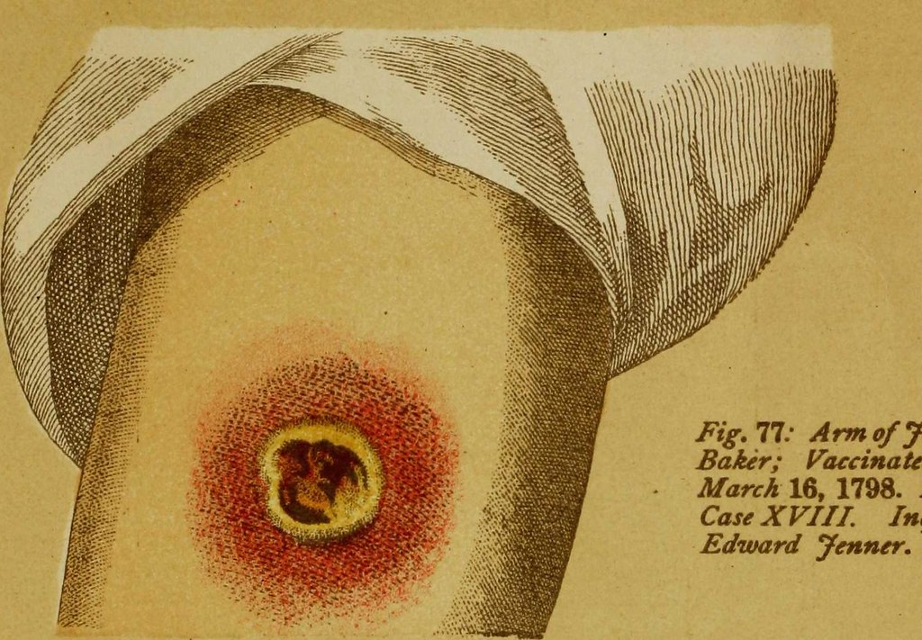 "Image from page 37 of ""Contagious and infectious disease: measures for their prevention and arrest; small pox (variola); modified small pox (varioloid); chicken pox (varicella); cow pox (variolæ vaccinaæ); vaccination, spurious vaccination"" (1884)"