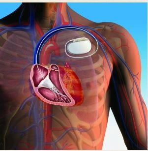 El Hospital Clínico implanta el primer desfibrilador subcutáneo en Aragón