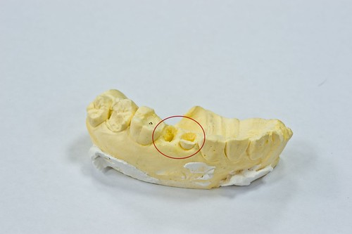 豐美牙醫診所-3D齒雕齒模2