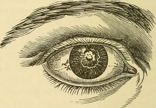 "Image from page 269 of ""A treatise on the diseases of the eye"" (1883)"