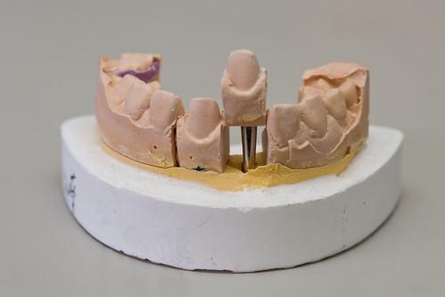 權泓牙醫診所-彰化植牙工廠22