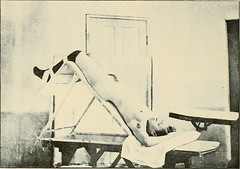 """Image from page 386 of """"The diagnosis and treatment of diseases of women"""" (1907)"""