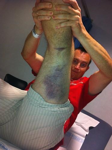 Quadriceps Contusion Bruise