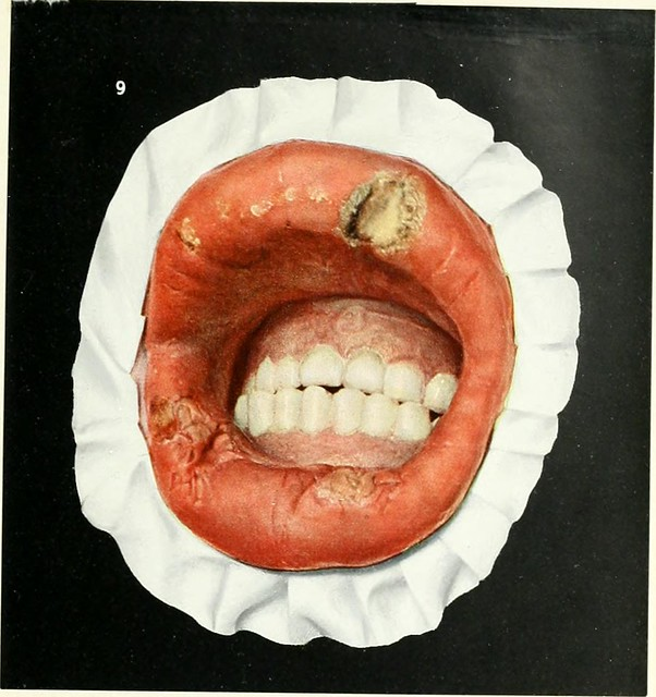 "Image from page 118 of ""Diseases of the mouth; for physicians, dentists, medical and dental students"" (1912)"