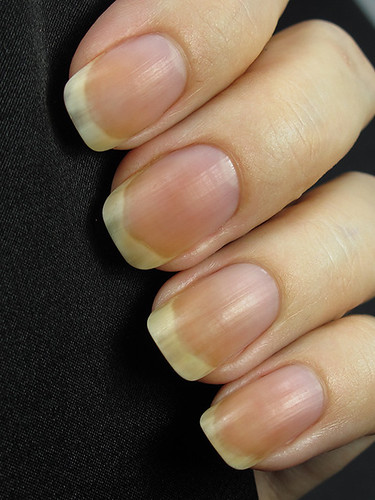 Pure Nail Oil - 3-day hydration treatment (after)