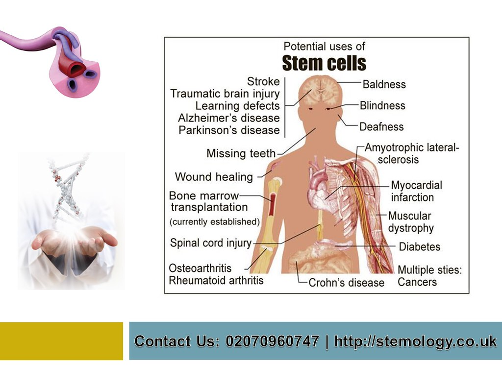 How Stem Cells Used - Stemology.co.uk - Stem Cells Used