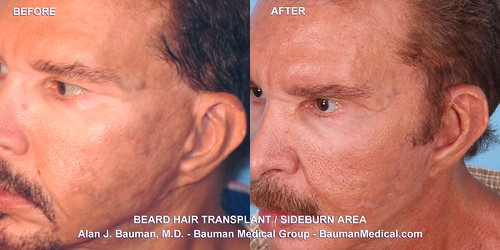 Beard Sideburn Facial Hair Transplant_DrAlanBauman