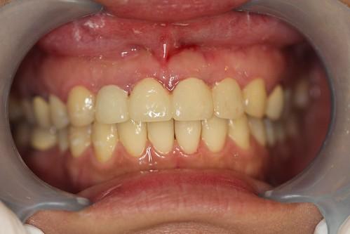 黃經理牙醫診所 賴盈利醫師的全瓷冠治療8