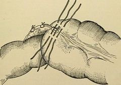 "Image from page 584 of ""Minor surgery and bandaging; including the treatment of fractures and dislocations, the ligation of arteries, amputations, excisions and resections, intestinal anastomosis, operations upon nerves and tendons, tracheotomy, intubatio"
