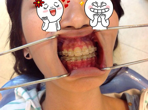 台中黃經理牙醫診所賴怡妏醫師牙齒矯正3