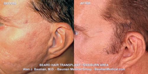 Beard Sideburn Facial Hair Transplant_DrAlanBauman_2