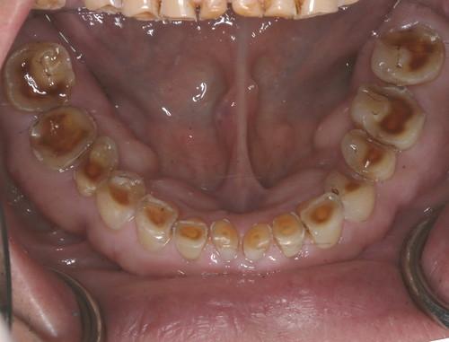 台中黃經理牙醫診所-陳柏均醫師-全口全瓷冠重建案例3