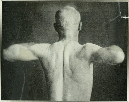"Image from page 82 of ""Applied anatomy and kinesiology; the mechanism of muscular movement"" (1919)"