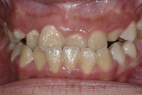 黃經理牙醫診所 兒童牙醫-戽斗牙齒矯正1